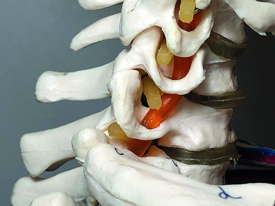 facet joint
